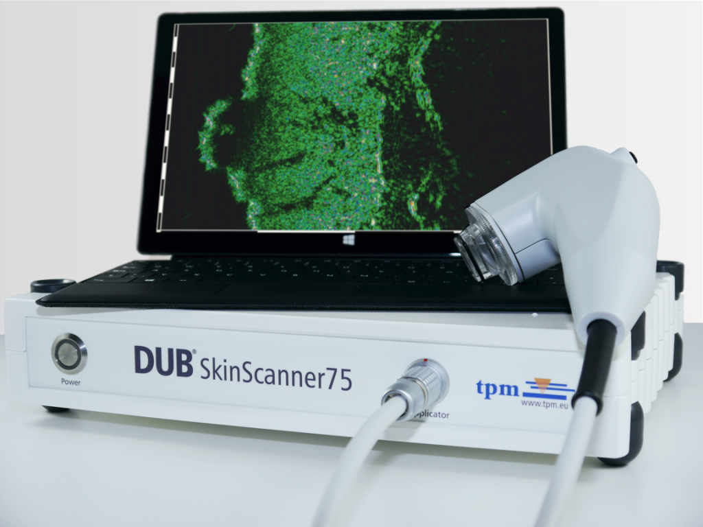 DUB SkinScanner75 with tablet