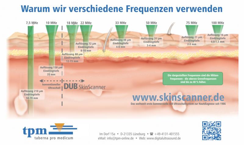hautultraschall beim dermatologen